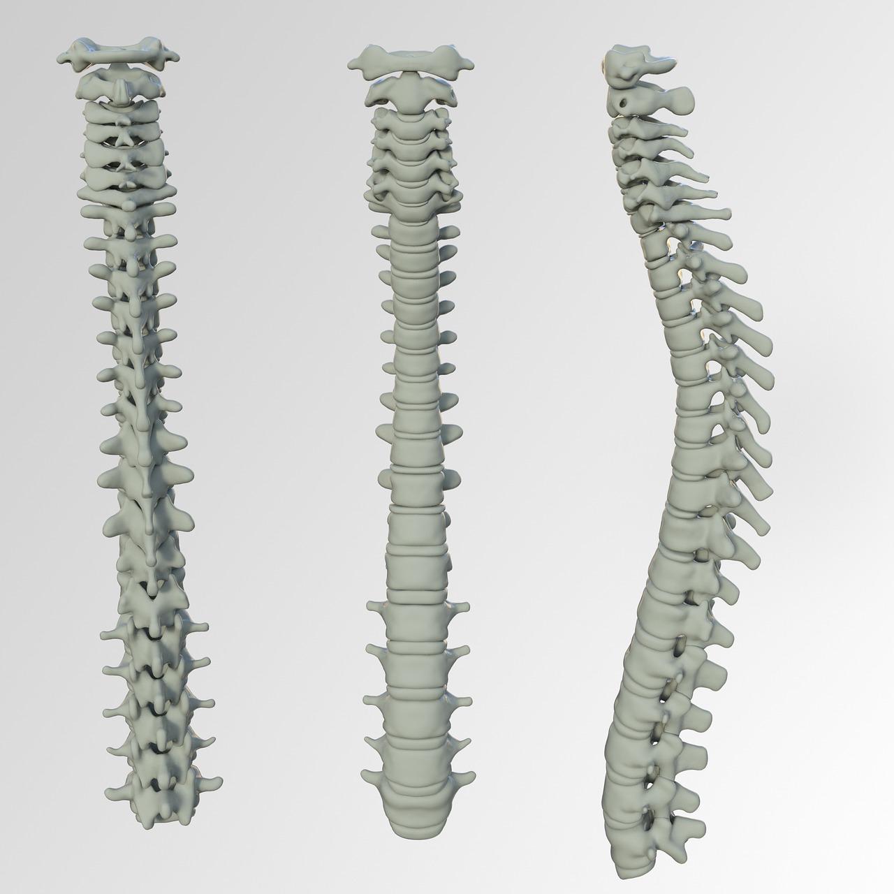 Spinal Screenings Reno, NV